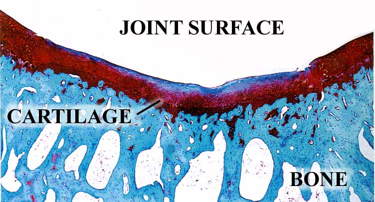 Cartilage Photomicrograph