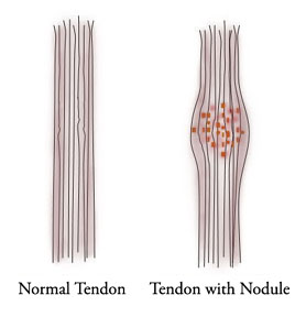 Tendon: Normal and w/nodule
