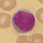 lymphocyte