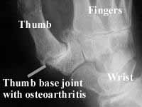 Osteoarthritis of the thumb