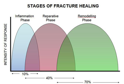 Stages of Fracture Healing